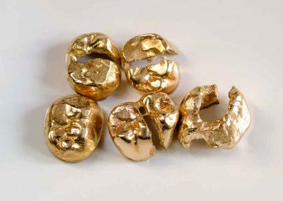 Goldankauf Warendorf - Ankauf von Zahngold - Westfälische Goldverwertung